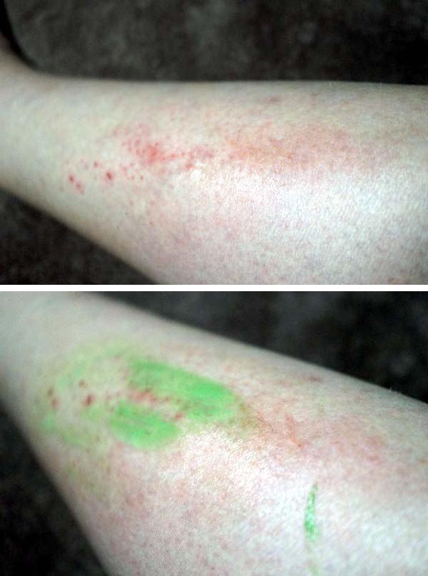 脚の引っかき傷